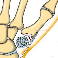 duim operatie